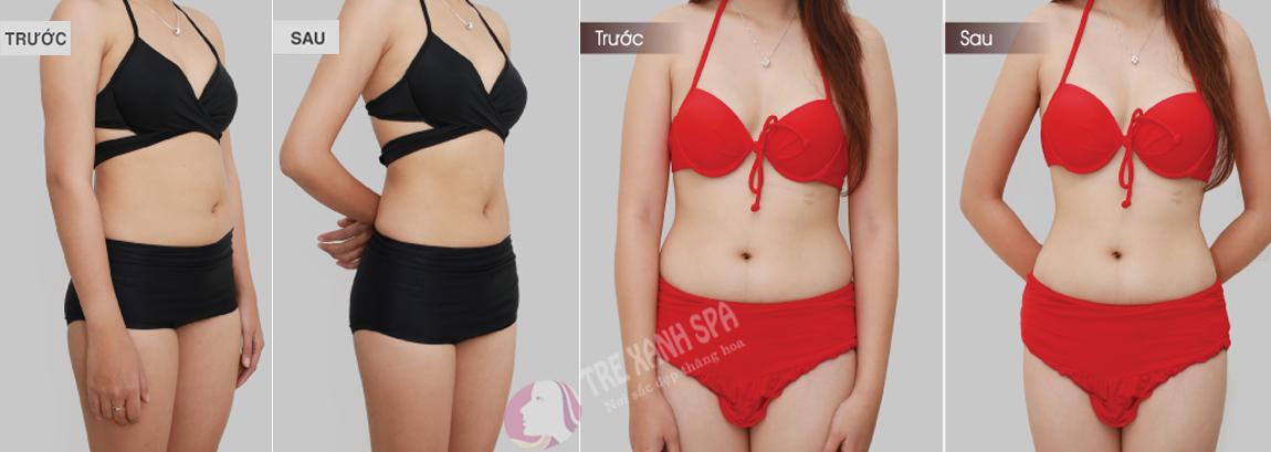 spa giảm béo hiệu quả tphcm