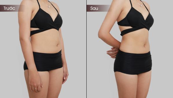 giảm béo bụng hiệu quả
